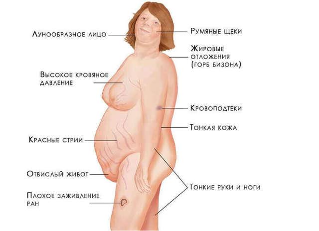 Первые симптомы опухоли надпочечников и ей лечение