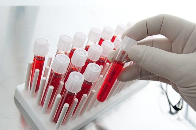 Диета, соответствующая вашей группе крови