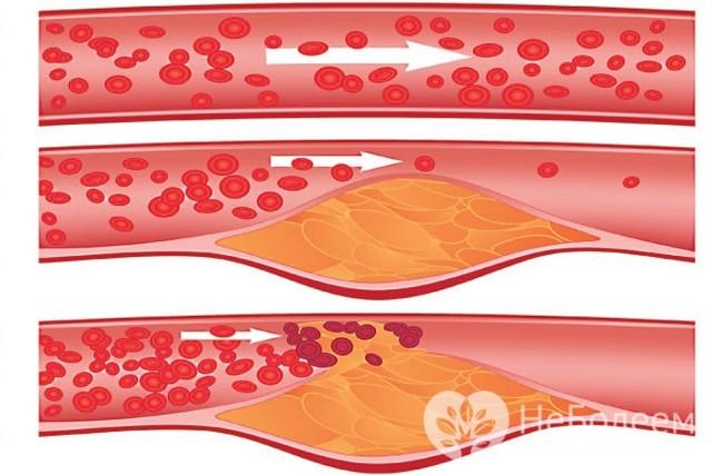 Атеросклероз сосудов головного мозга симптомы и лечение