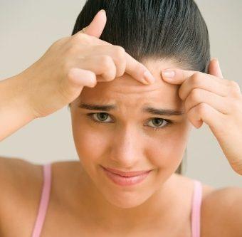 Прыщи на лбу: причины, лечение медикаментами и народными средствами