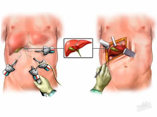 Удаление желчного пузыря путем лапароскопии
