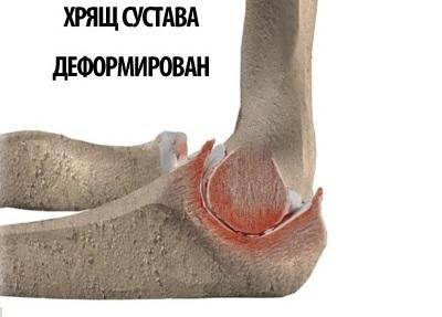 Эпикондилит локтевого сустава: симптомы и лечение
