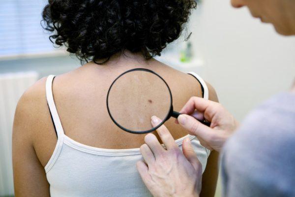 Пигментная меланома: развитие из невусов, симптомы