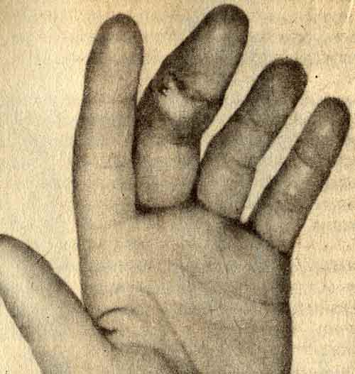 Способы лечения панариция пальца на руке