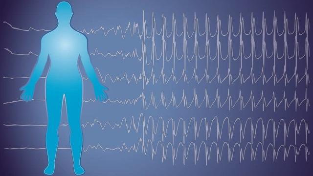 Симптомы эпилепсии: причины и проявления