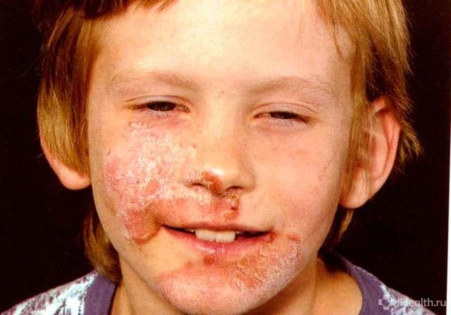 Стрептодермия у детей и взрослых: виды, симптомы, способы лечения