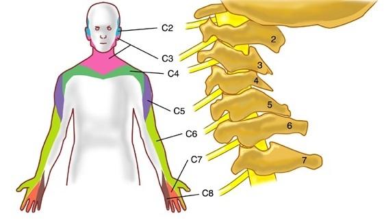 Защемление нерва в шейном отделе