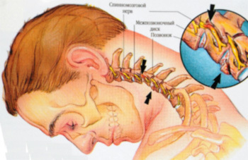 Гипоплазия левой и правой позвоночной артерии у детей