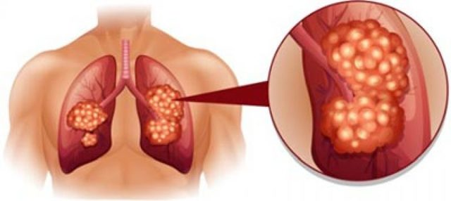 Рак лёгких: симптомы и признаки