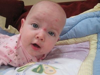Ветрянка у новорожденных и грудных детей - фотографии, симптомы, лечение