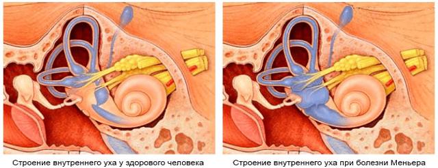 8eeb550e3894924bf4255b953793e703 - Симптоми на помала болест предизвикува третман
