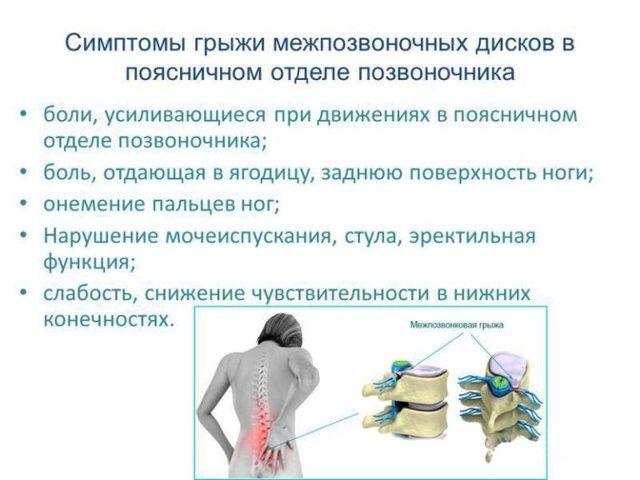 Выполнение гимнастики при грыже пояснично-крестцового отдела позвоночника