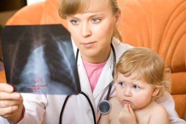 Пневмония у детей: симптомы и лечение