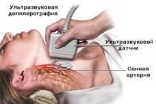 Триплексное сканирование сосудов шеи и головного мозга