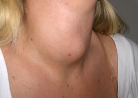 Заболевания щитовидной железы: симптомы у женщин, лечение