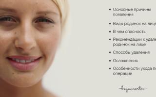 Родинки на лице: их значение, удаление