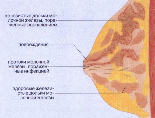 Лактостаз у кормящей матери: симптомы и лечение