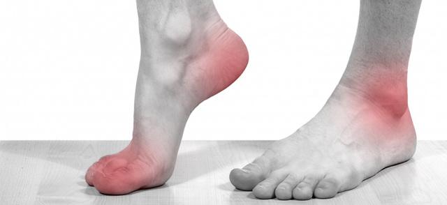Артроз стопы ног, различные стадии и лечение