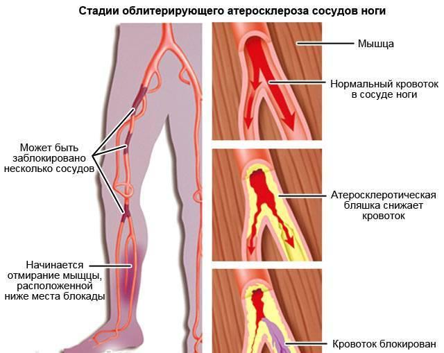 Что такое облитерирующий атеросклероз сосудов нижних конечностей