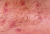 Глисты у человека - симптомы