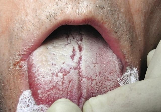 Молочница у мужчин: симптомы, лечение, фото