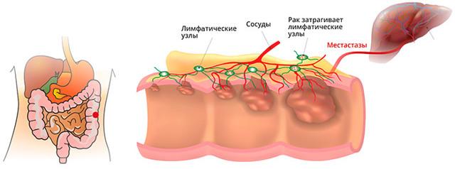 Рак прямой кишки: первые симптомы