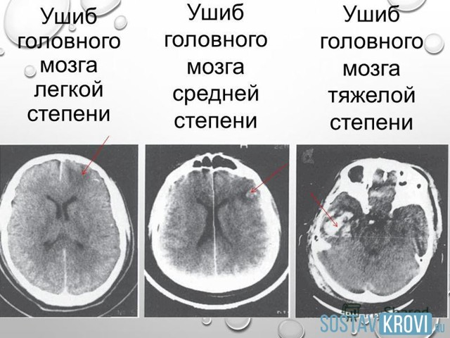 Что такое ушиб головного мозга