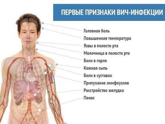 Первые симптомы ВИЧ у мужчин