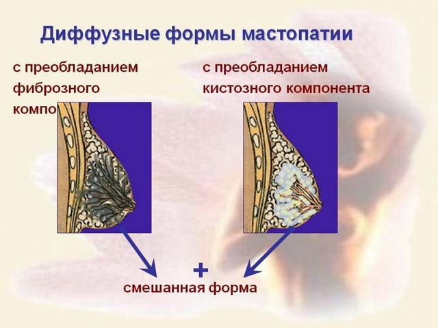 Диффузная фиброзно-кистозная мастопатия молочных желез