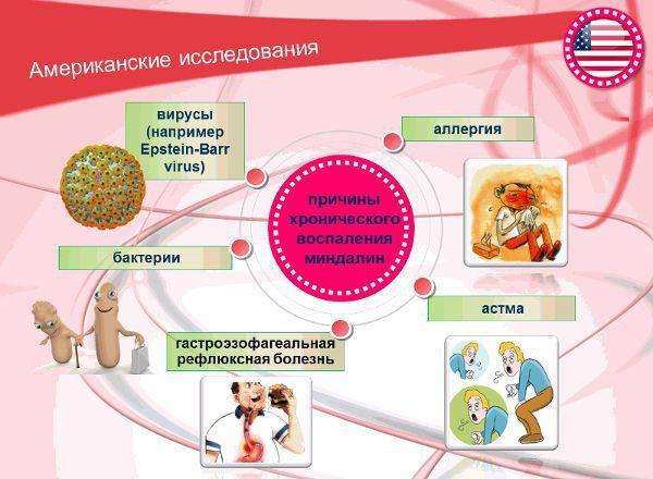 Хронический тонзиллит: симптомы и лечение