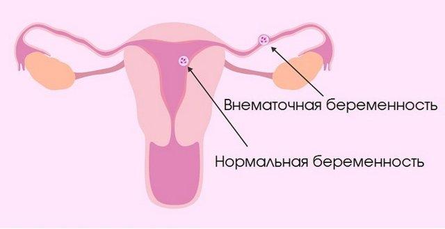 Почему может болеть низ живота и поясница у мужчин и женщин