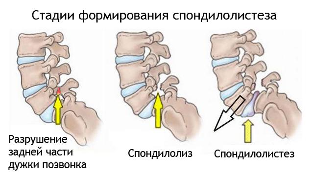 Что такое спондилолистез пояснично-крестцового отдела позвоночника