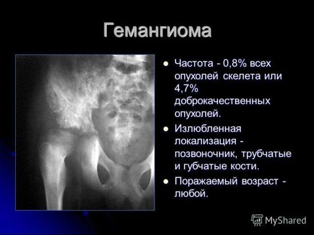 Локализация и лечение гемангиомы позвоночника