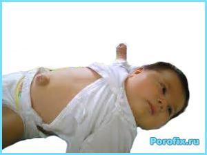 Пупочная грыжа у детей: лечение и профилактика