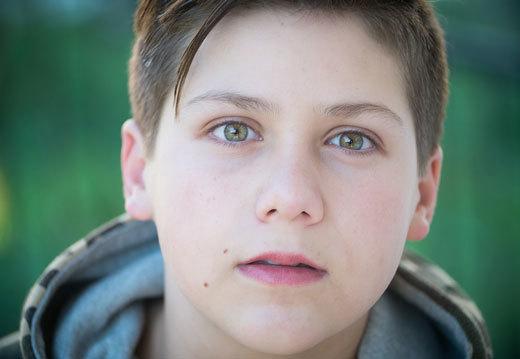 Меланома у детей: формы, симптомы и методика лечения
