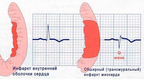 Обширный инфаркт и его последствия: шансы выжить