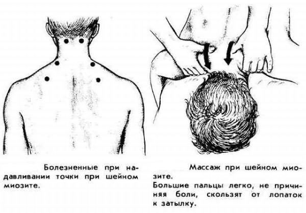 Миозит, его разновидности, симптомы и лечение в домашних условиях