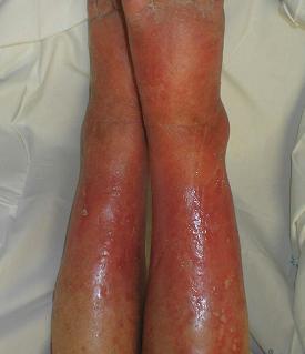 Симптомы и лечение рожистого воспаления