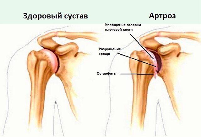 Артроз плечевого сустава: симптомы и лечение