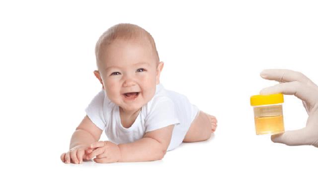 Повышены лейкоциты в моче у ребенка