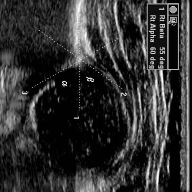 УЗИ тазобедренных суставов у грудничков