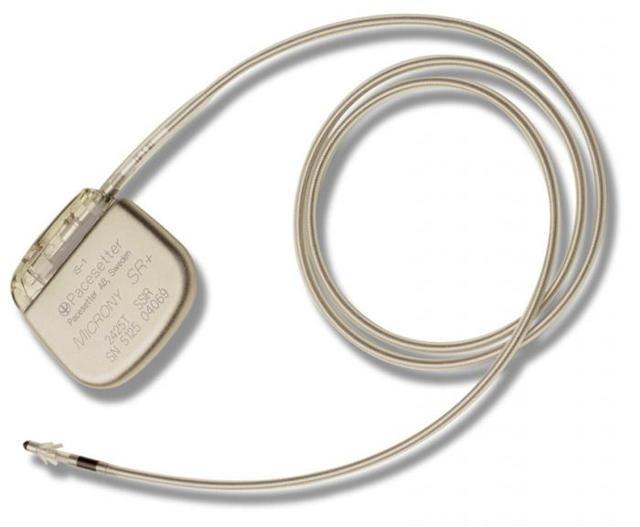 Кардиостимулятор: какие противопоказания после его установки