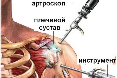 Артрит плечевого сустава: причины, симптомы, лечение