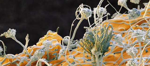 Как бороться с себорейным дерматитом? Лечение медицинскими и народными средствами