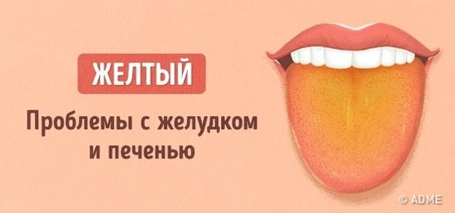 Язык – зеркало здоровья. Виды и причины налёта на языке