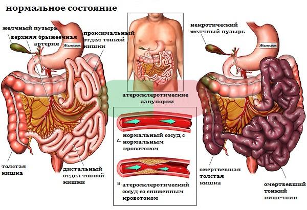 Симптомы и лечение ишемии кишечника
