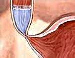 Ахалазия кардии и ее причины, симптомы, методы лечения