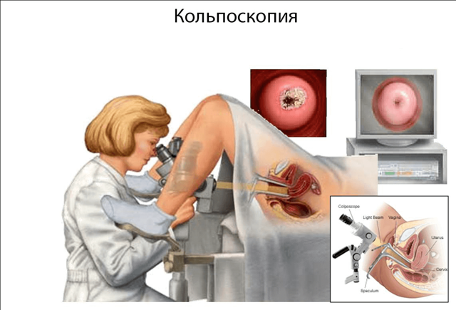 Кольпоскопия шейки матки – виды и показания