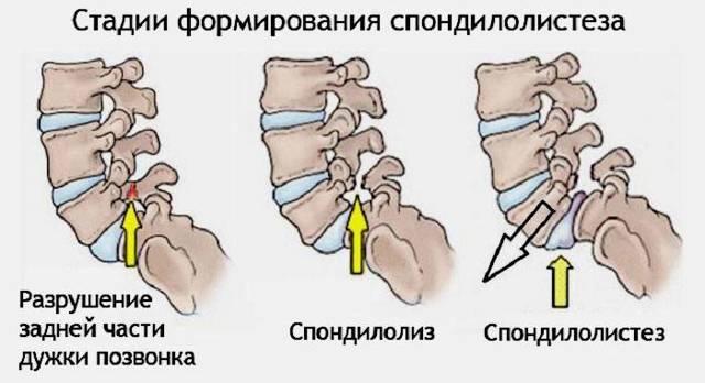 Воспаление седалищного нерва: симптомы, лечение