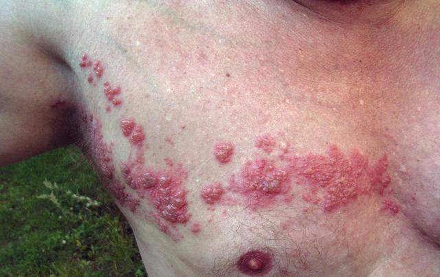 Опоясывающий лишай: методы лечения, профилактика
